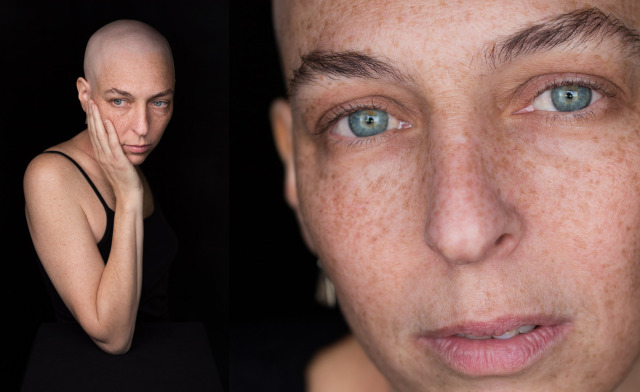 Facing Chemo, a photographic project gallery